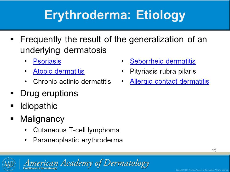 Erythroderma: Etiology