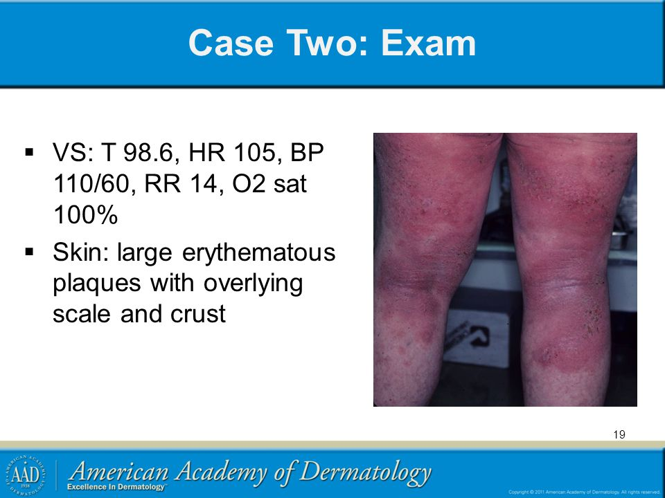 Case Two: Exam VS: T 98.6, HR 105, BP 110/60, RR 14, O2 sat 100%