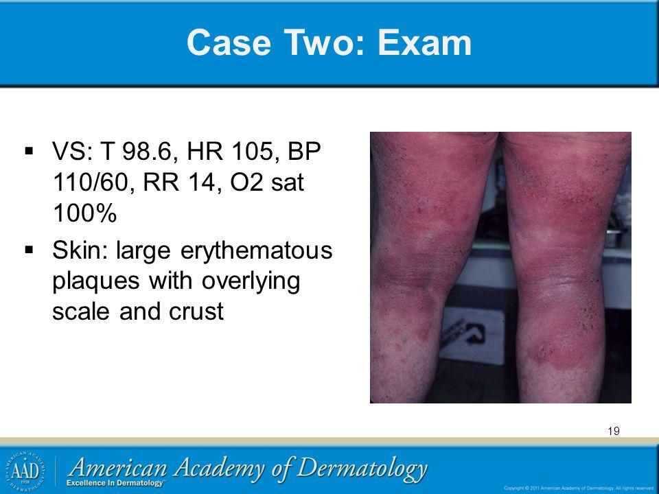 Case Two: Exam VS: T 98.6, HR 105, BP 110/60, RR 14, O2 sat 100%