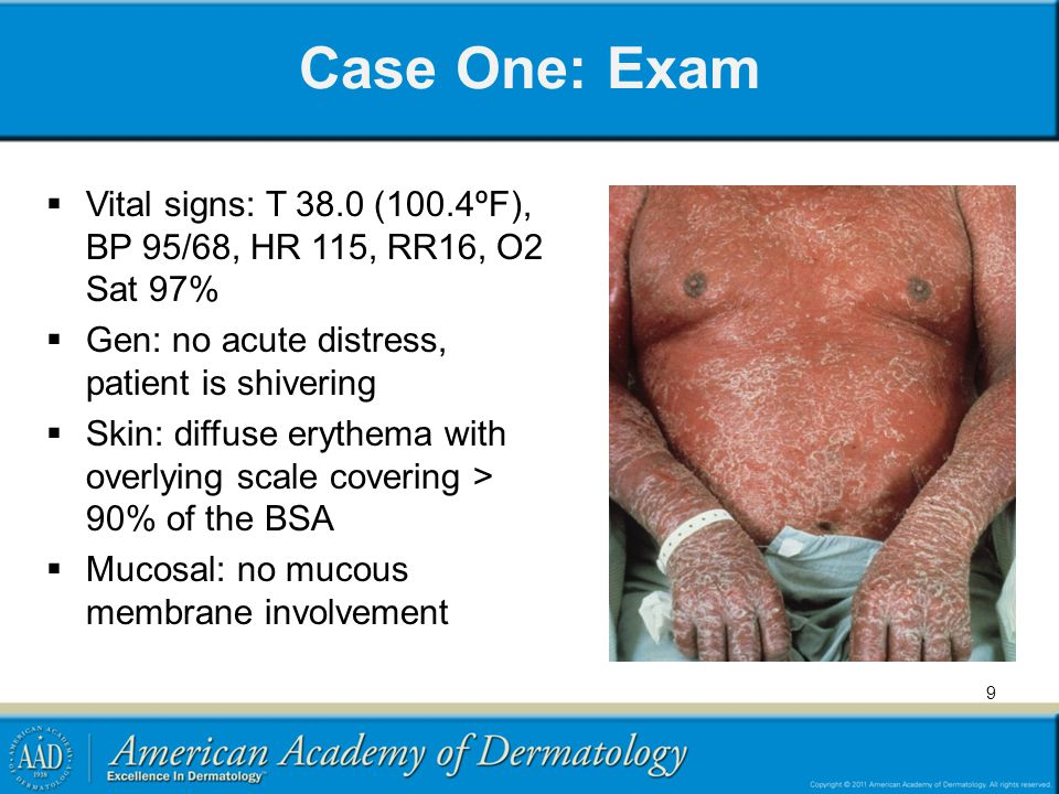 Case One: Exam Vital signs: T 38.0 (100.4ºF), BP 95/68, HR 115, RR16, O2 Sat 97% Gen: no acute distress, patient is shivering.