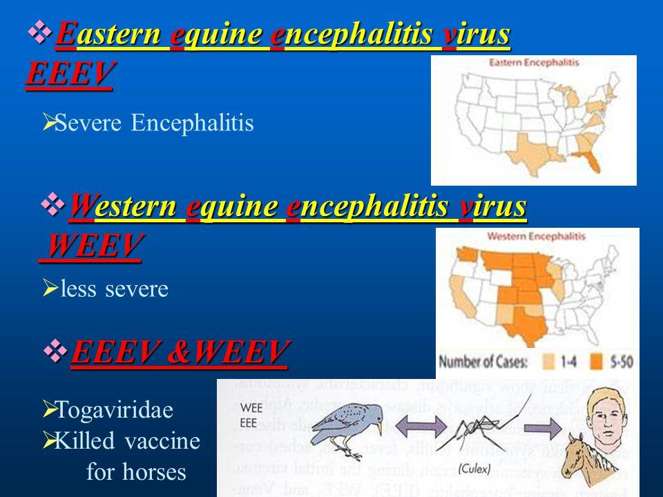 Eastern equine encephalitis virus EEEV