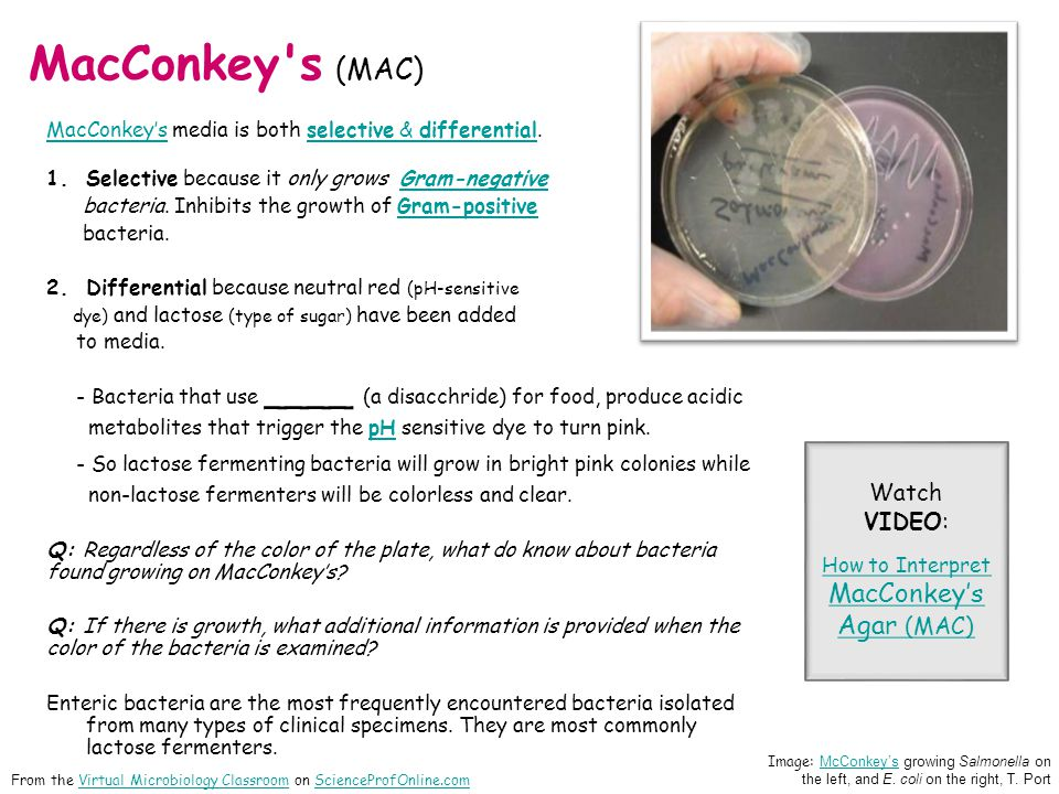 How to Interpret MacConkey's Agar (MAC)