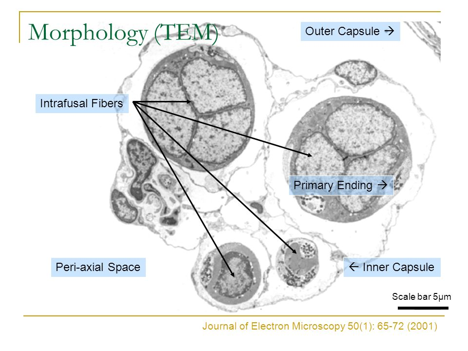 Morphology (TEM) Outer Capsule  Intrafusal Fibers Primary Ending 