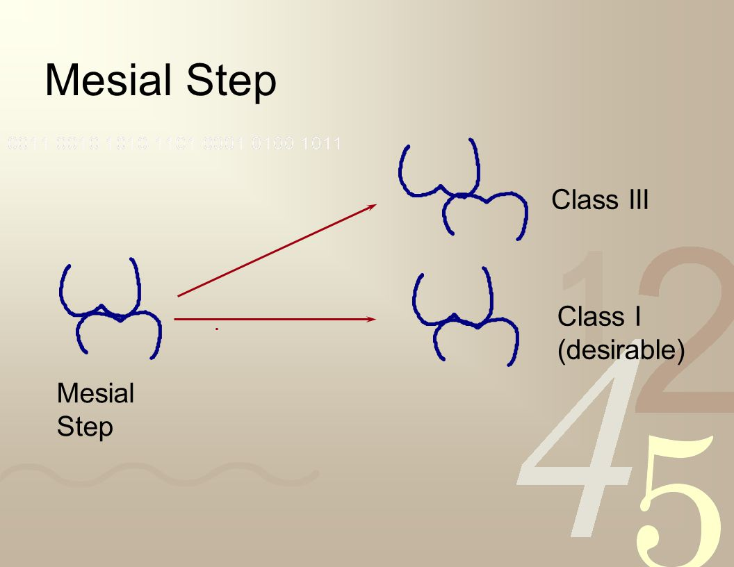 Mesial Step Class III Class I (desirable) Mesial Step