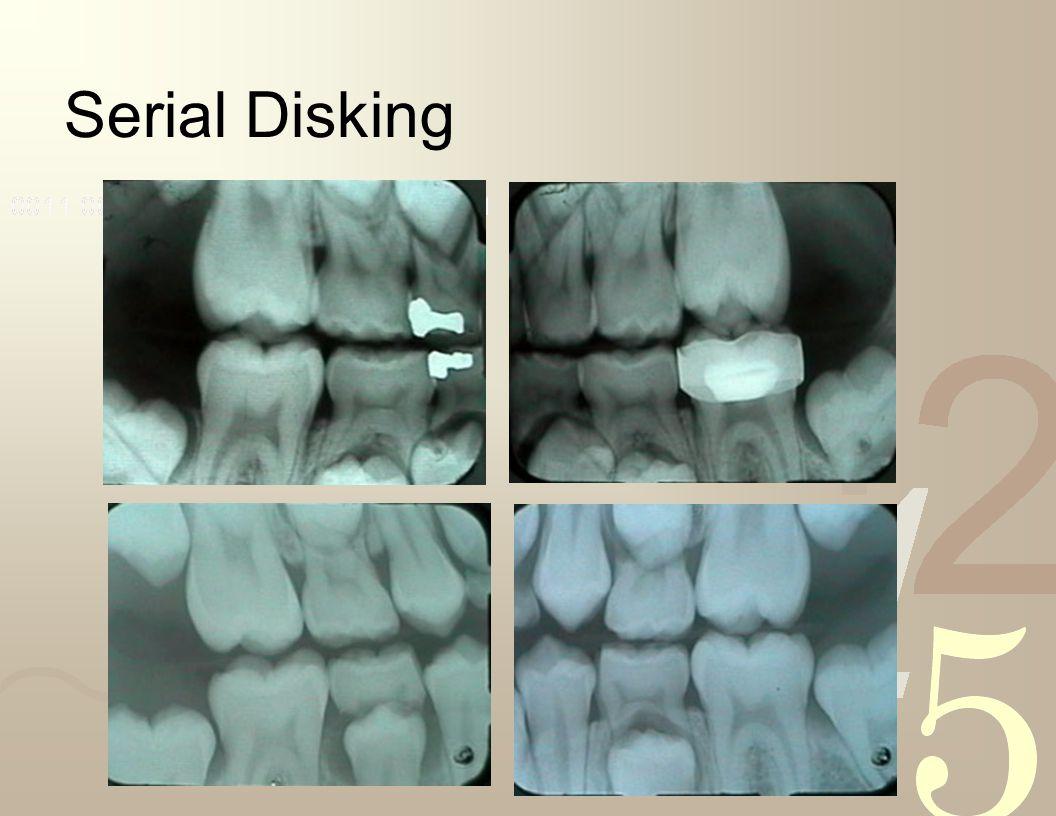 Serial Disking