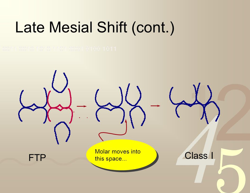 Late Mesial Shift (cont.)