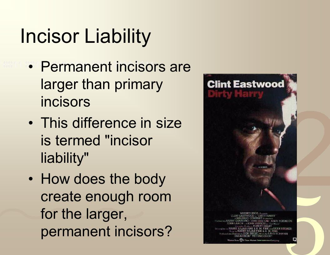 Incisor Liability Permanent incisors are larger than primary incisors