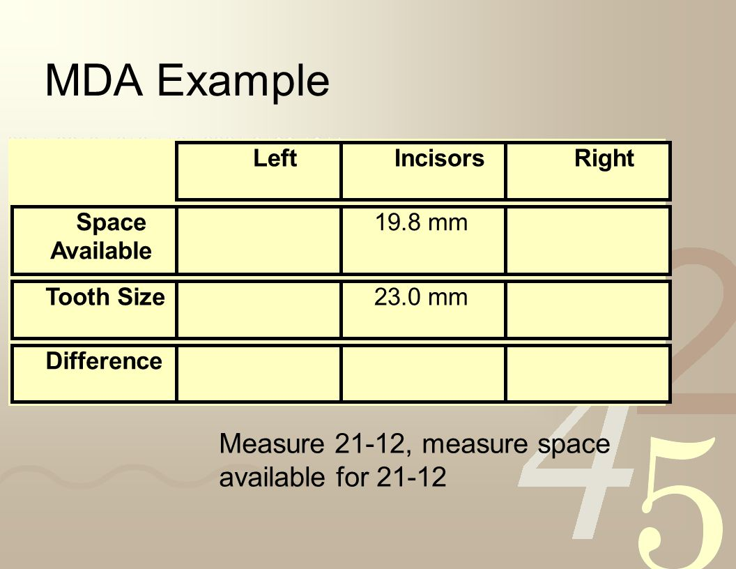MDA Example Measure 21-12, measure space available for 21-12 Left
