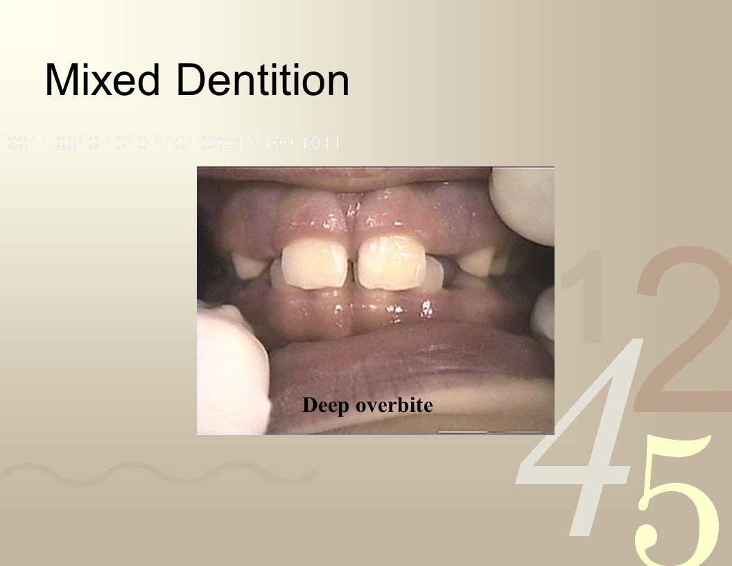 Mixed Dentition Deep overbite