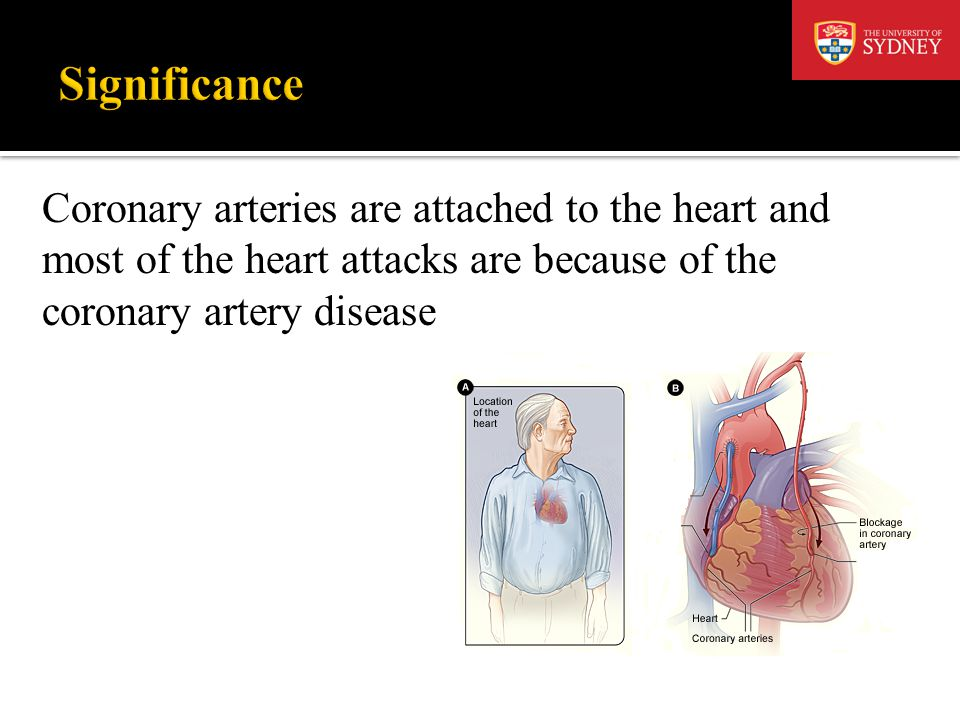 Significance Coronary arteries are attached to the heart and most of the heart attacks are because of the coronary artery disease.