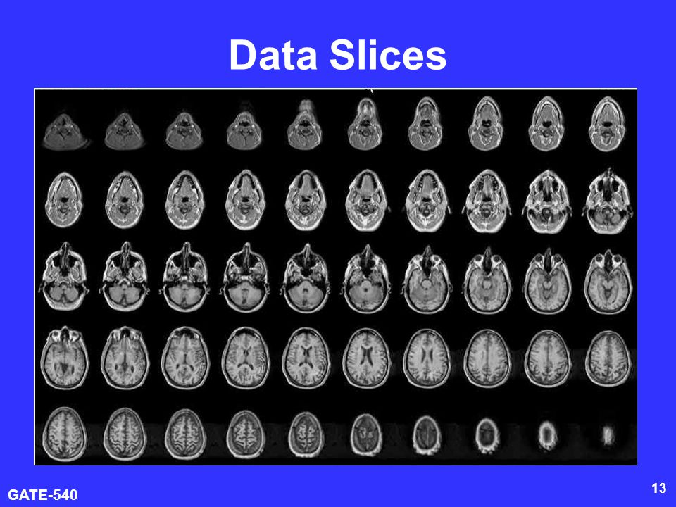 Data Slices