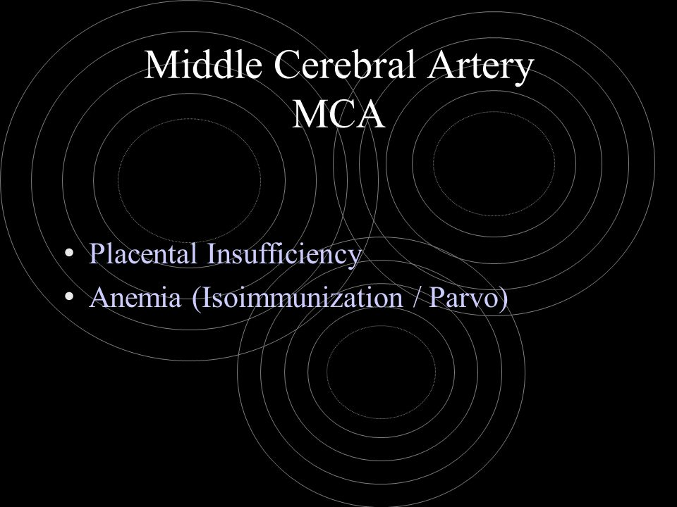 Middle Cerebral Artery MCA