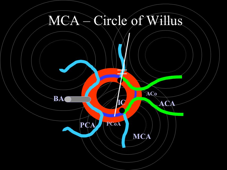 MCA – Circle of Willus ACo BA IC ACA PCA PCoA MCA