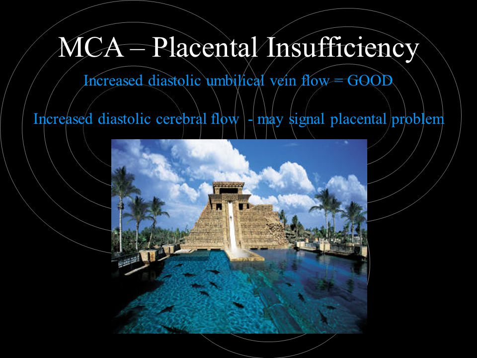 MCA – Placental Insufficiency