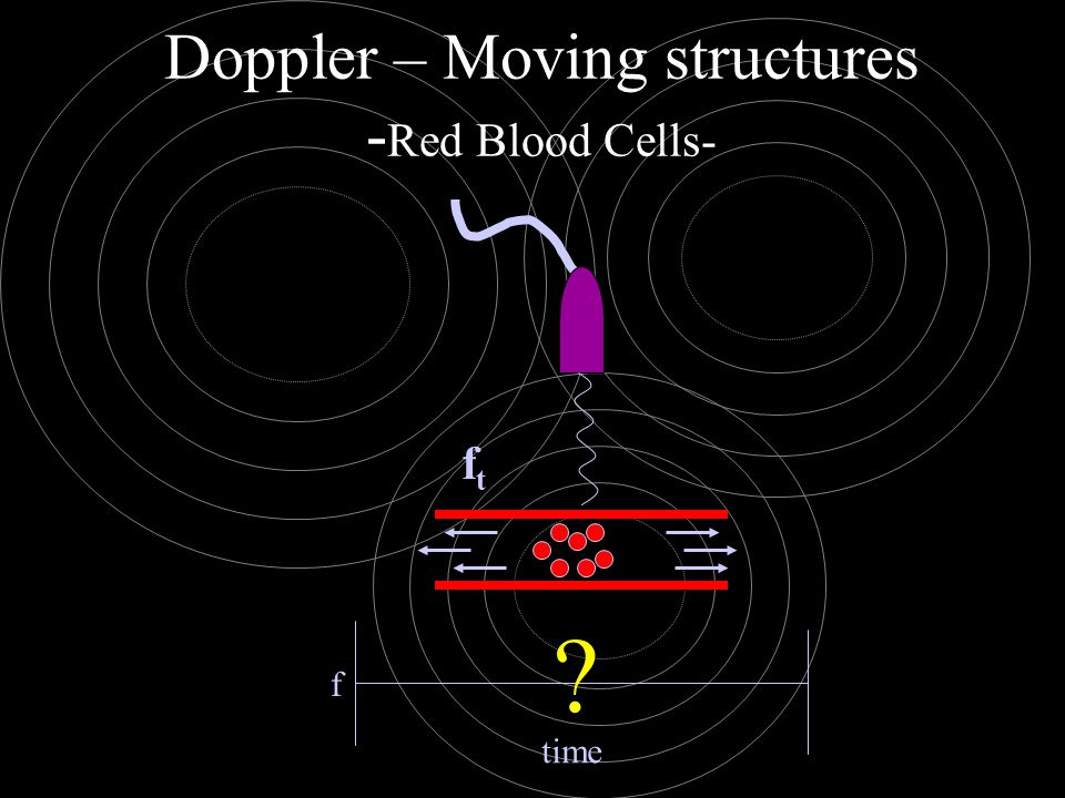 Doppler – Moving structures -Red Blood Cells-