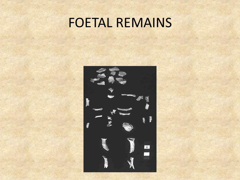 FOETAL REMAINS