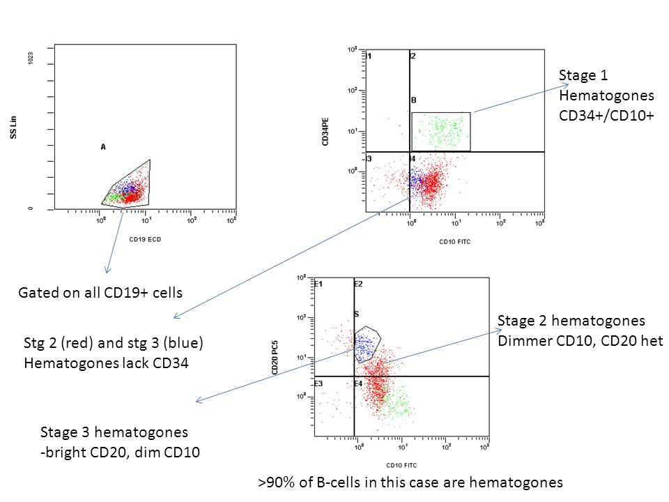 Stage 1 Hematogones. CD34+/CD10+ Gated on all CD19+ cells. Stage 2 hematogones. Dimmer CD10, CD20 het.