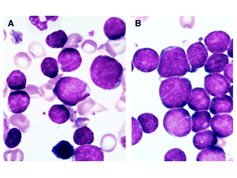 (A) Several hematogones are illustrated in this bone marrow smear from a 3-year-old boy with immune thrombocytopenia.