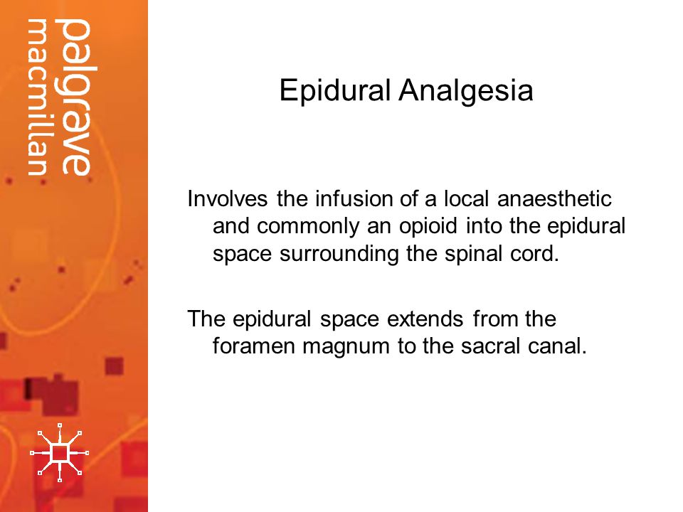 Epidural Analgesia Involves the infusion of a local anaesthetic and commonly an opioid into the epidural space surrounding the spinal cord.