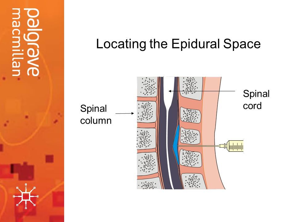 Locating the Epidural Space