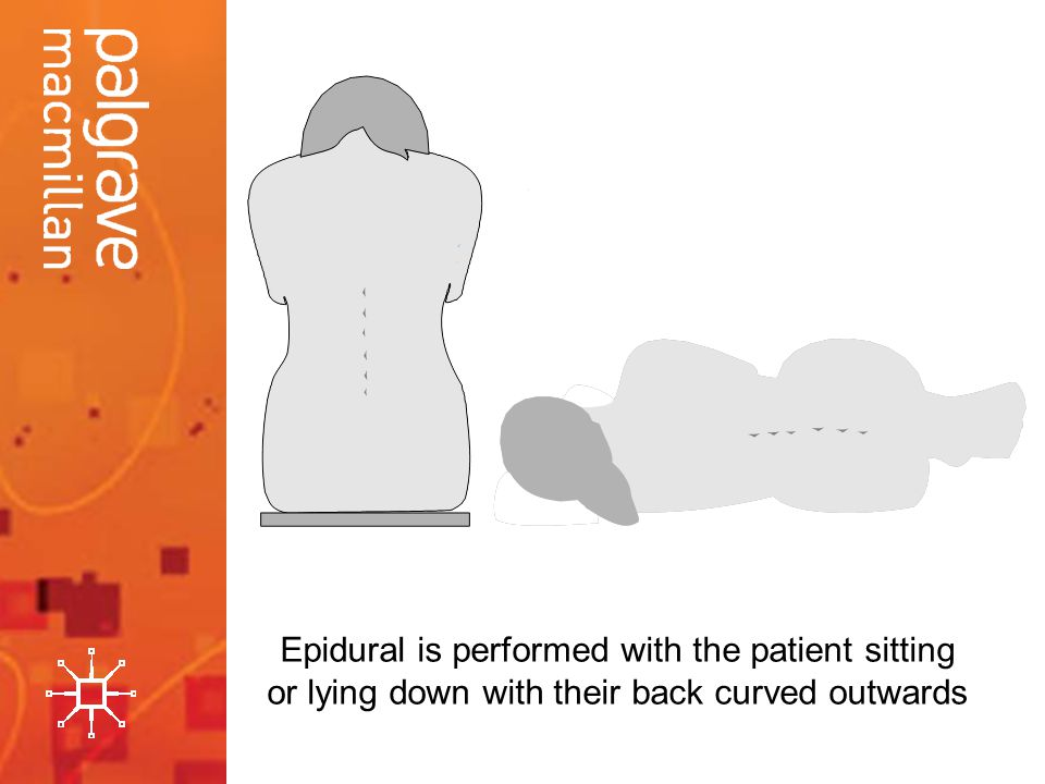 Epidural is performed with the patient sitting or lying down with their back curved outwards