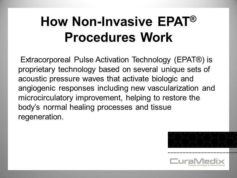 How Non-Invasive EPAT® Procedures Work