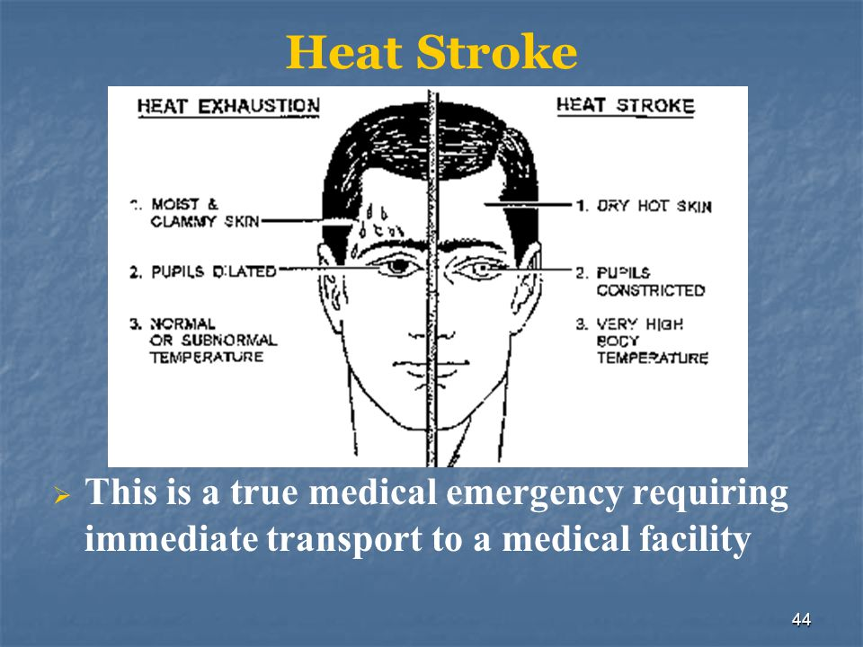 Heat Stroke This is a true medical emergency requiring immediate transport to a medical facility. More signs and symptoms: