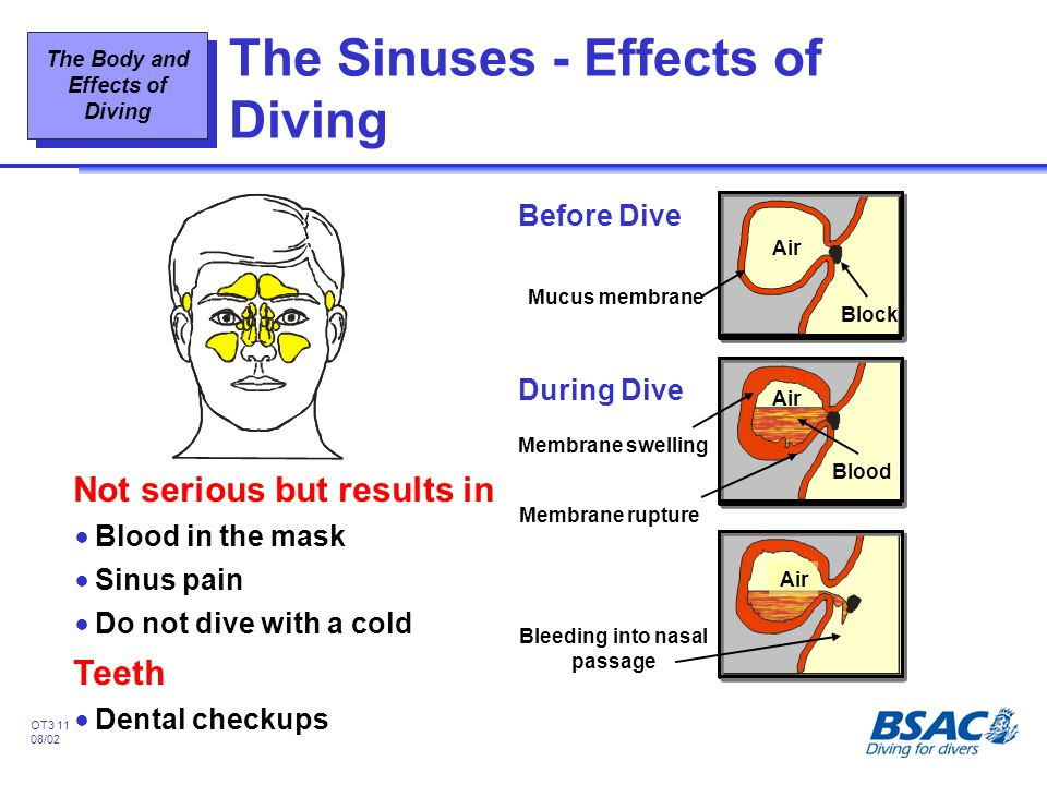 The Sinuses - Effects of Diving