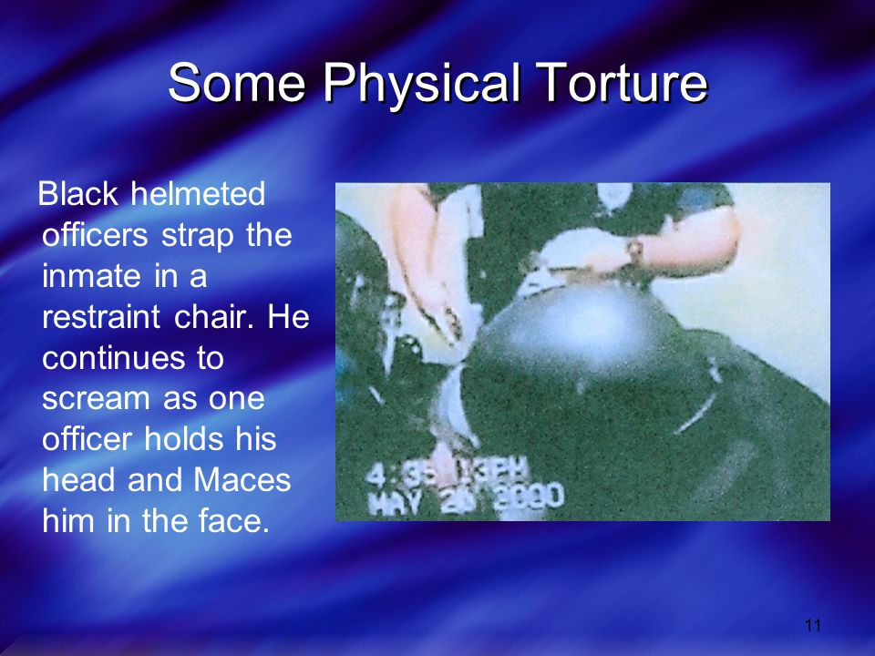 Some Physical Torture