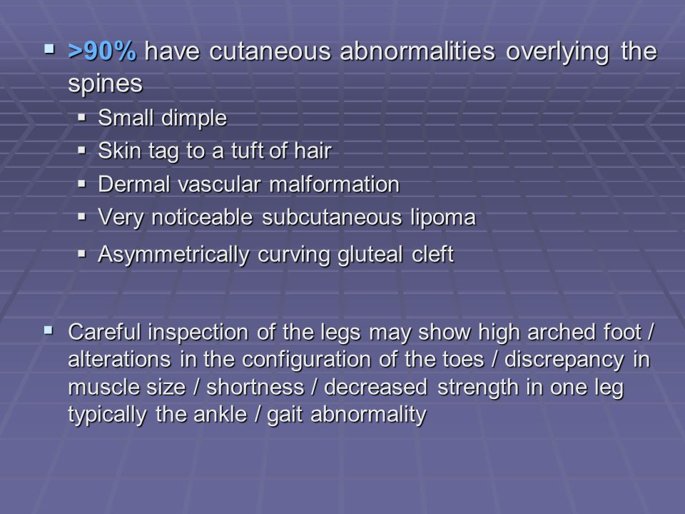 >90% have cutaneous abnormalities overlying the spines
