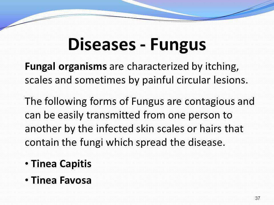 Diseases - Fungus Tinea Capitis Tinea Favosa