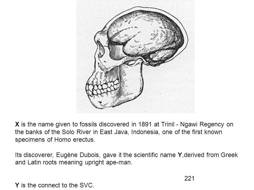 X is the name given to fossils discovered in 1891 at Trinil - Ngawi Regency on the banks of the Solo River in East Java, Indonesia, one of the first known specimens of Homo erectus.