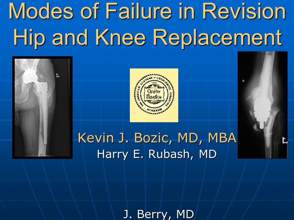 Modes of Failure in Revision Hip and Knee Replacement