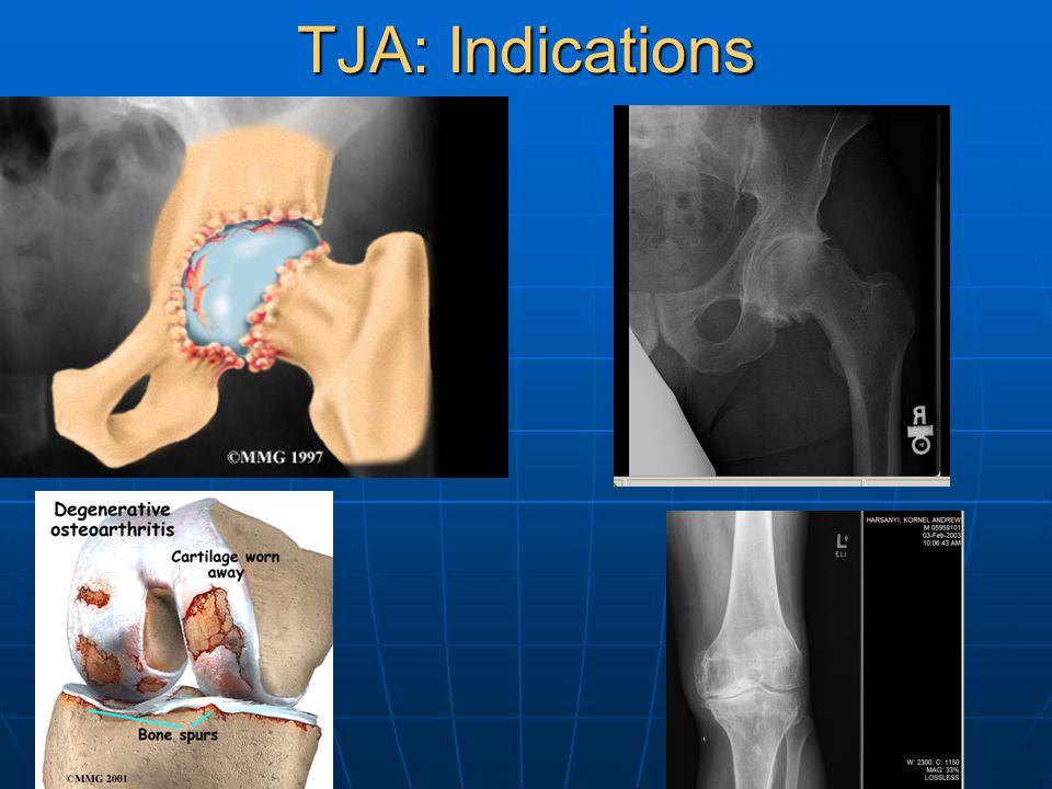 TJA: Indications