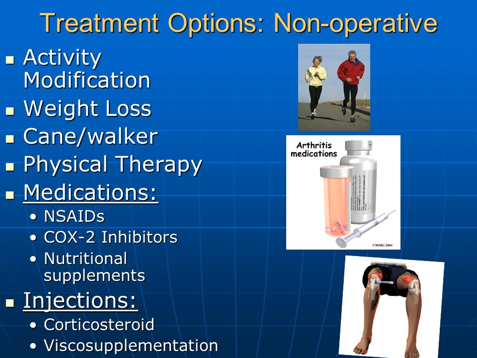 Treatment Options: Non-operative