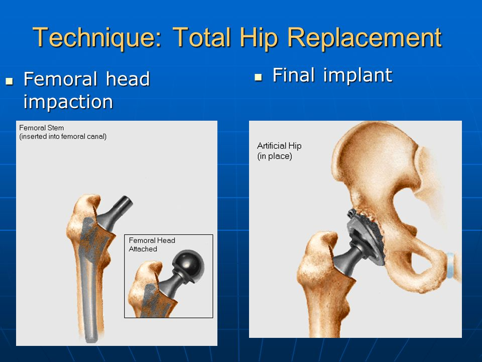 Technique: Total Hip Replacement