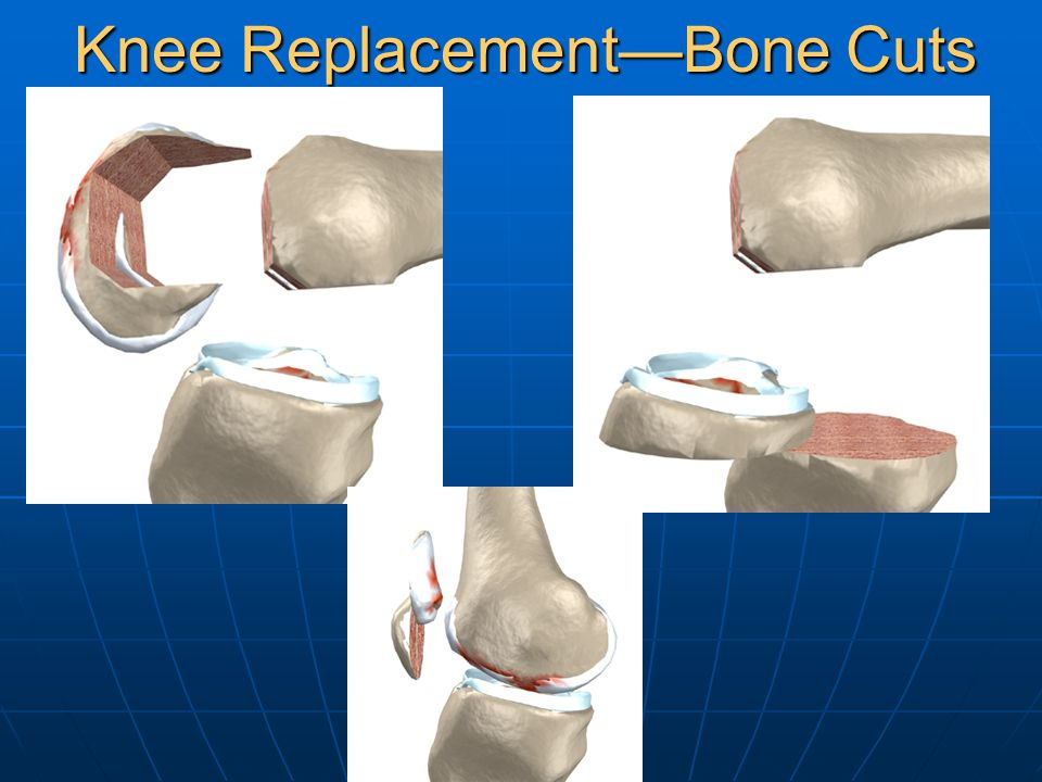 Knee Replacement—Bone Cuts