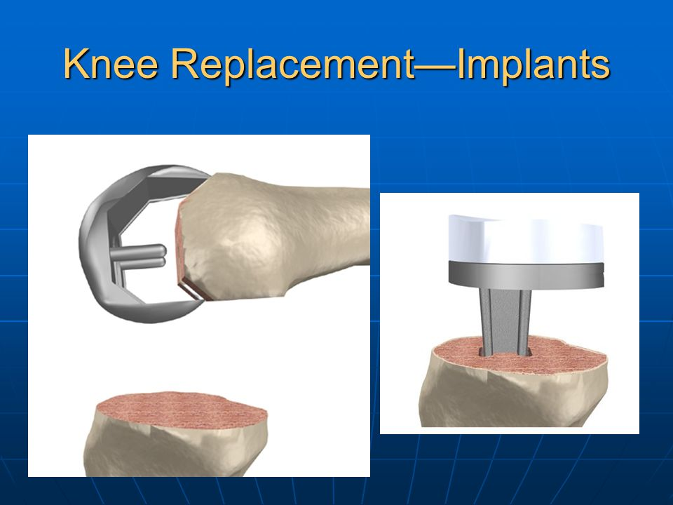 Knee Replacement—Implants