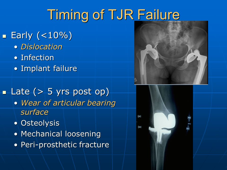 Timing of TJR Failure Early (<10%) Late (> 5 yrs post op)
