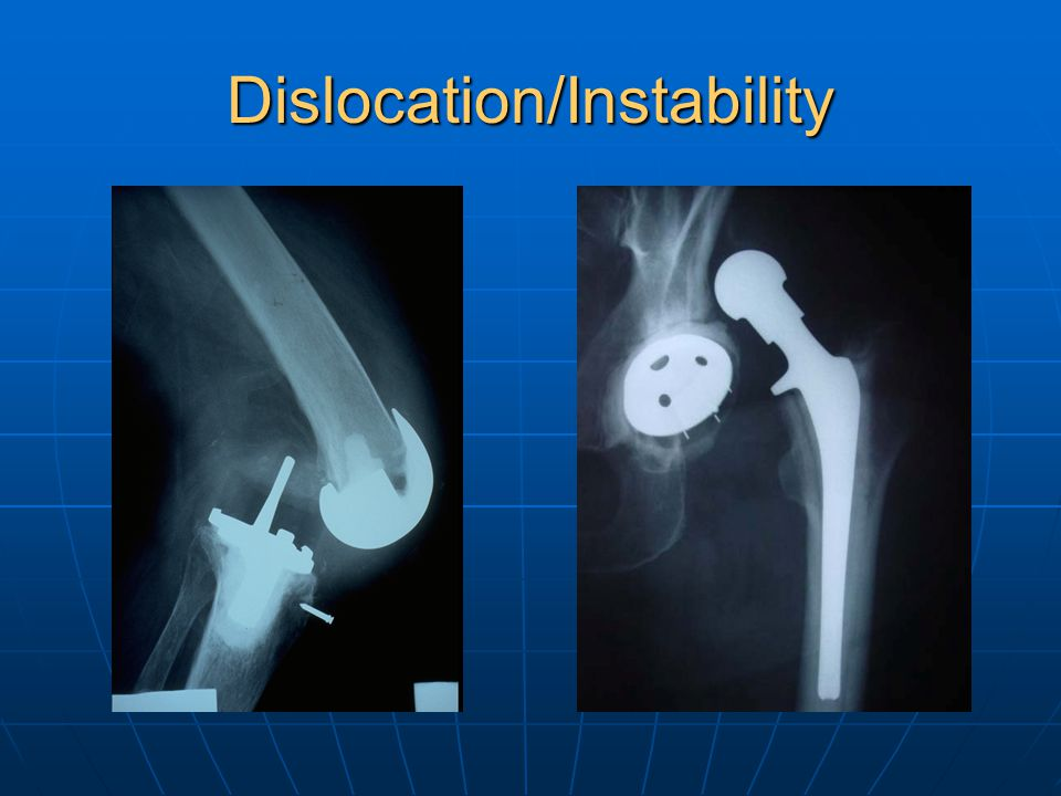 Dislocation/Instability