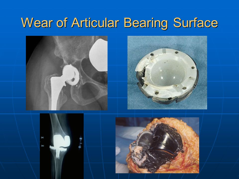Wear of Articular Bearing Surface