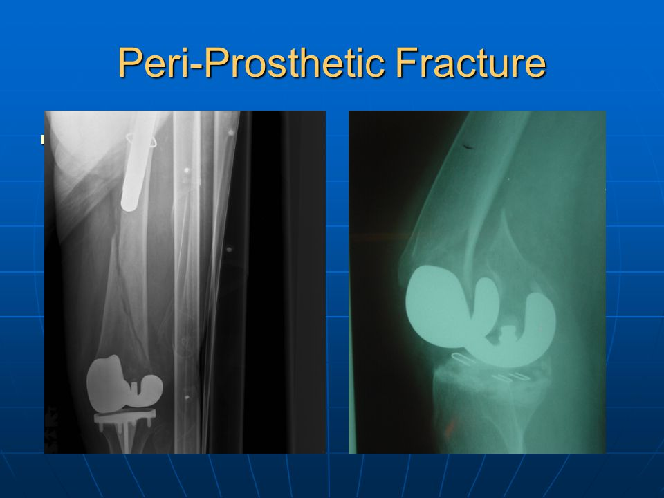Peri-Prosthetic Fracture