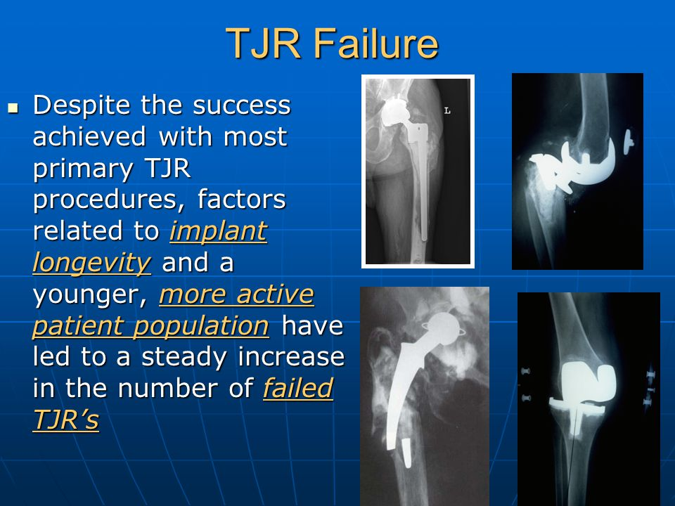 TJR Failure