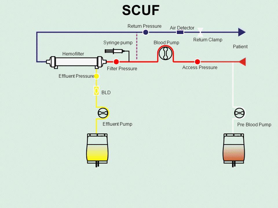 SCUF Return Pressure Air Detector Return Clamp Syringe pump Blood Pump