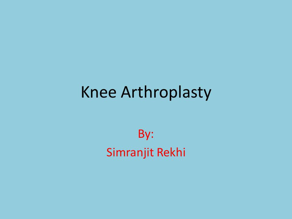 Knee Arthroplasty By: Simranjit Rekhi