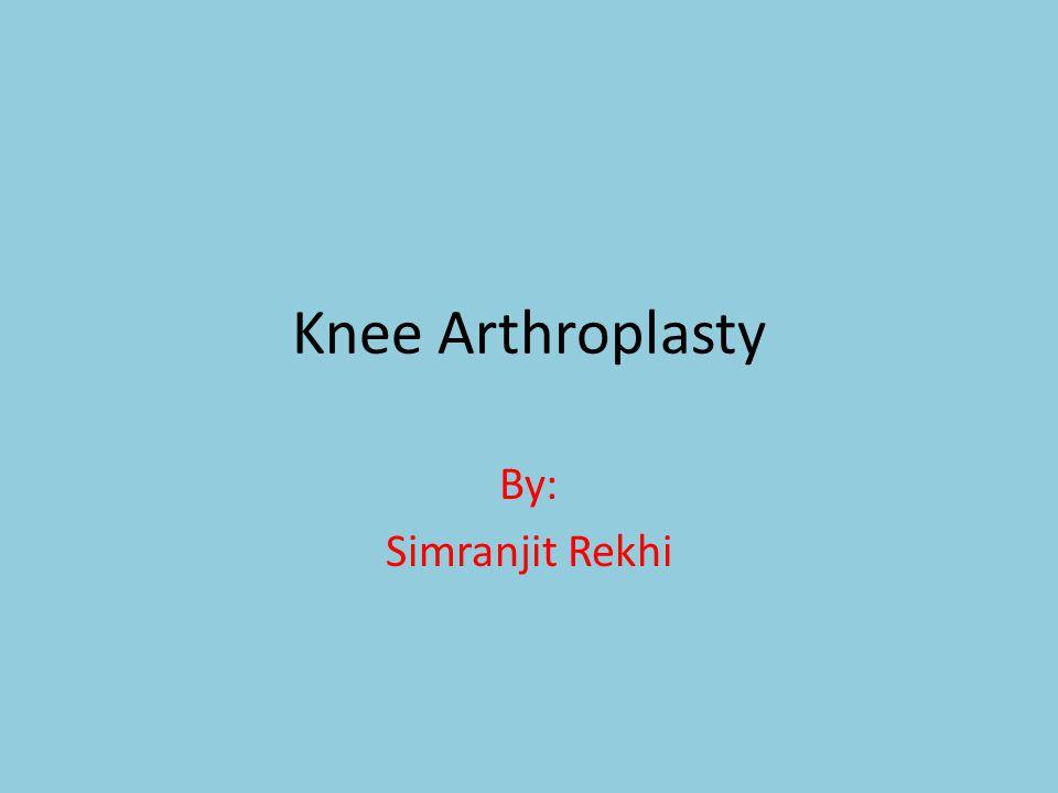 Knee Arthroplasty By: Simranjit Rekhi