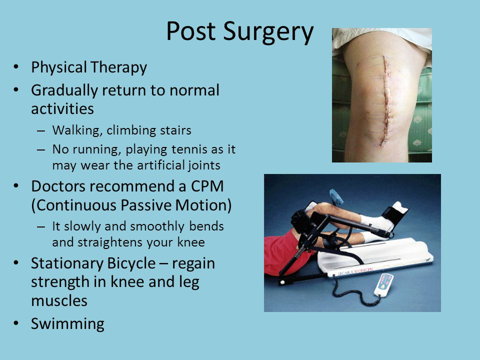 Post Surgery Physical Therapy Gradually return to normal activities