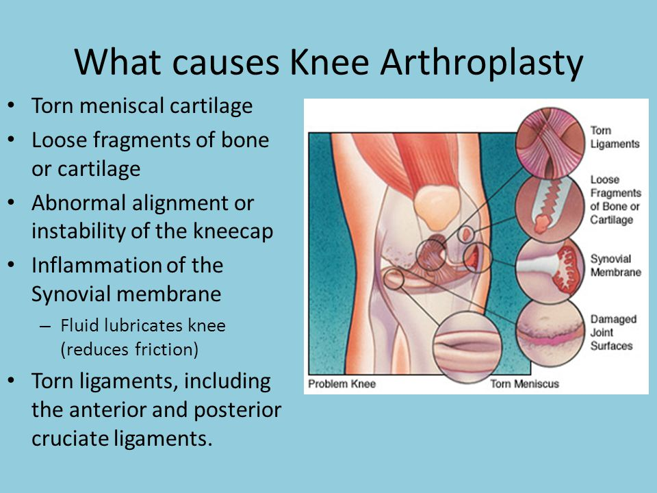 What causes Knee Arthroplasty