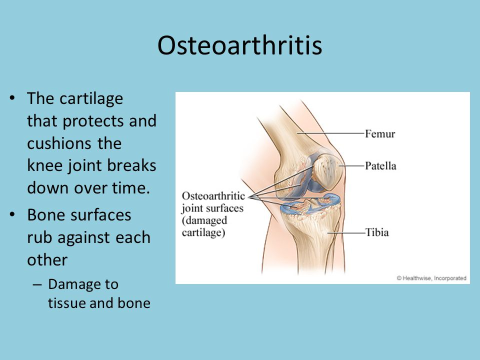 Osteoarthritis The cartilage that protects and cushions the knee joint breaks down over time. Bone surfaces rub against each other.