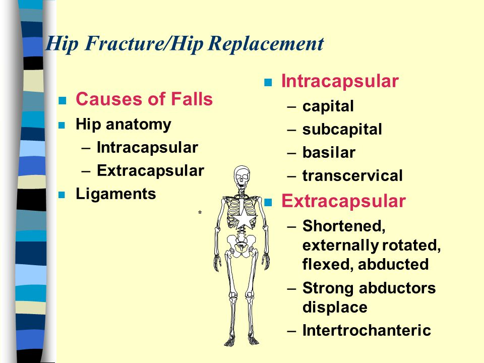 Hip Fracture/Hip Replacement